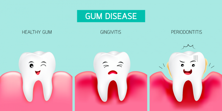 Gingivitis - inflammation of the gums