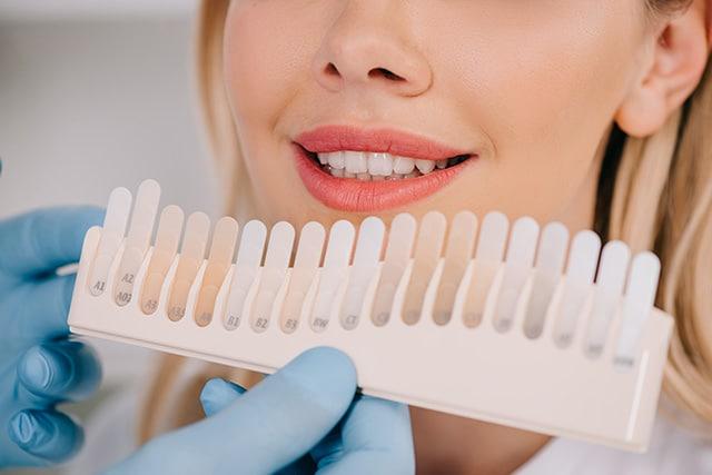 Cosmetic Dentist Christchurch - Veneers