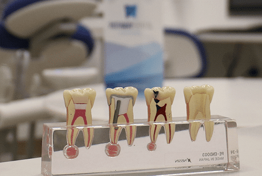Root Canal Therapy | Pathway Dental Christchurch