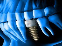 Dental Implant - Defining Key Terms