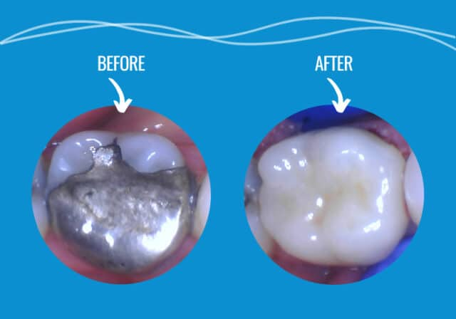 Pathway Dental Cerec Crown In A Day - Before & After